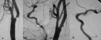 CaRESS (Carotid Revascularization using Endarterectomy or Stenting Systems) study +85 év es
