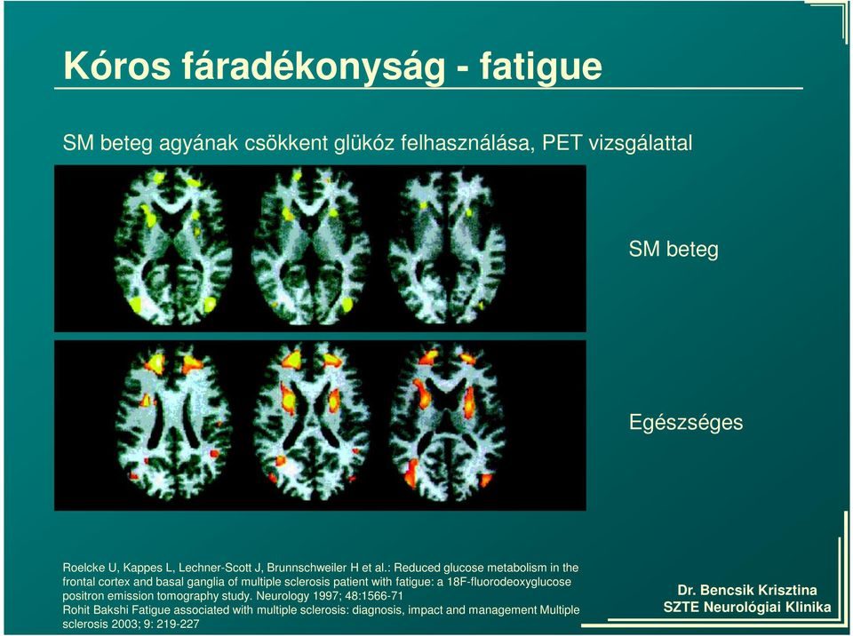 : Reduced glucose metabolism in the frontal cortex and basal ganglia of multiple sclerosis patient with fatigue: a