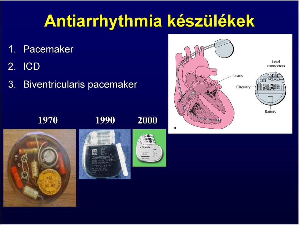 Pacemaker 2. ICD 3.