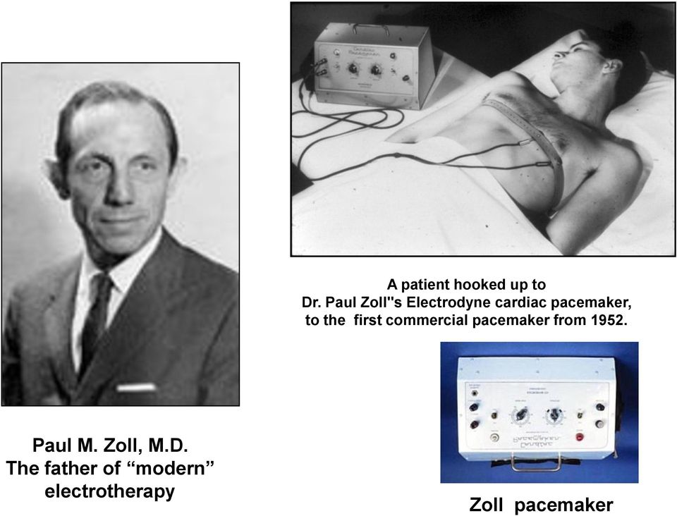 the first commercial pacemaker from 1952.