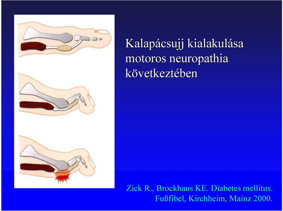 , Brockhaus KE. Diabetes mellitus.