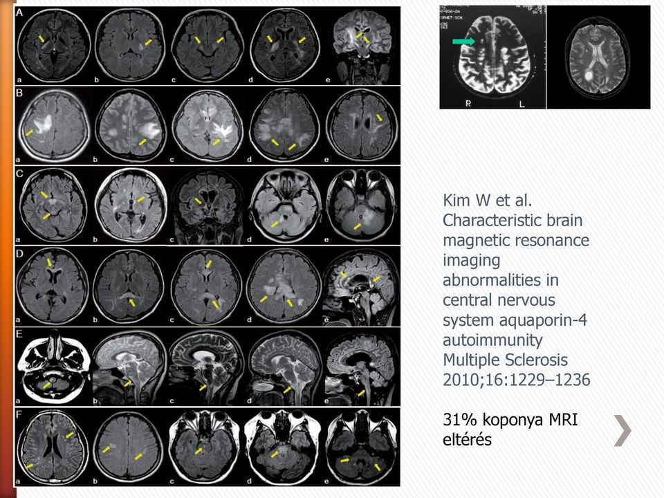 imaging abnormalities in central nervous