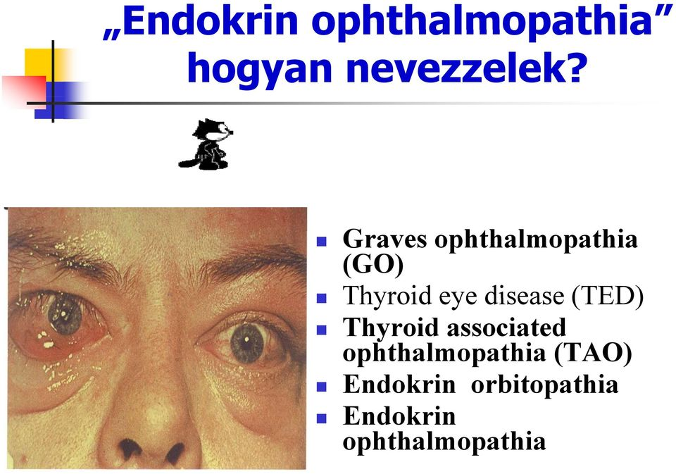 disease (TED) Thyroid associated ophthalmopathia