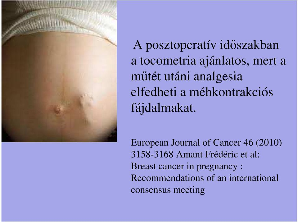European Journal of Cancer 46 (2010) 3158-3168 Amant Frédéric et
