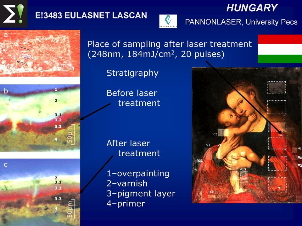 pulses) Stratigraphy Before laser treatment After