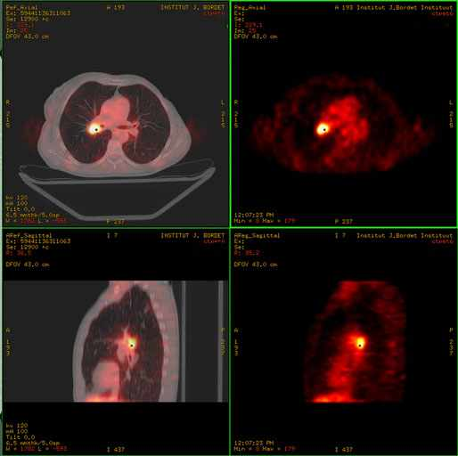 bronchus carcinoma a PET-CT a
