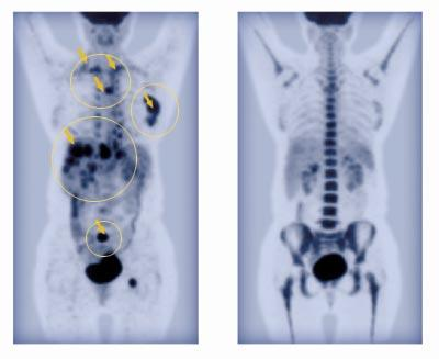 PET: Lymphoma